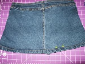 Back is sewn back together